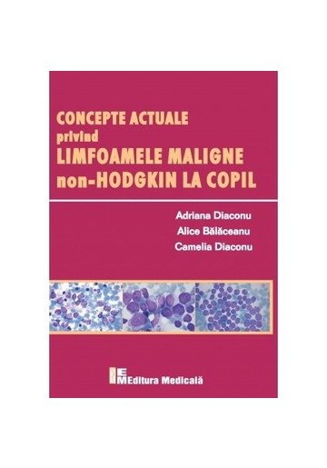 Concepte actuale privind limfoamele maligne non-Hodgkin la copil