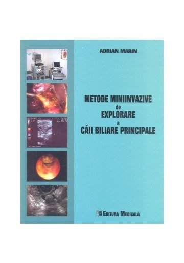 Metode miniinvazive de explorare a căii biliare principale